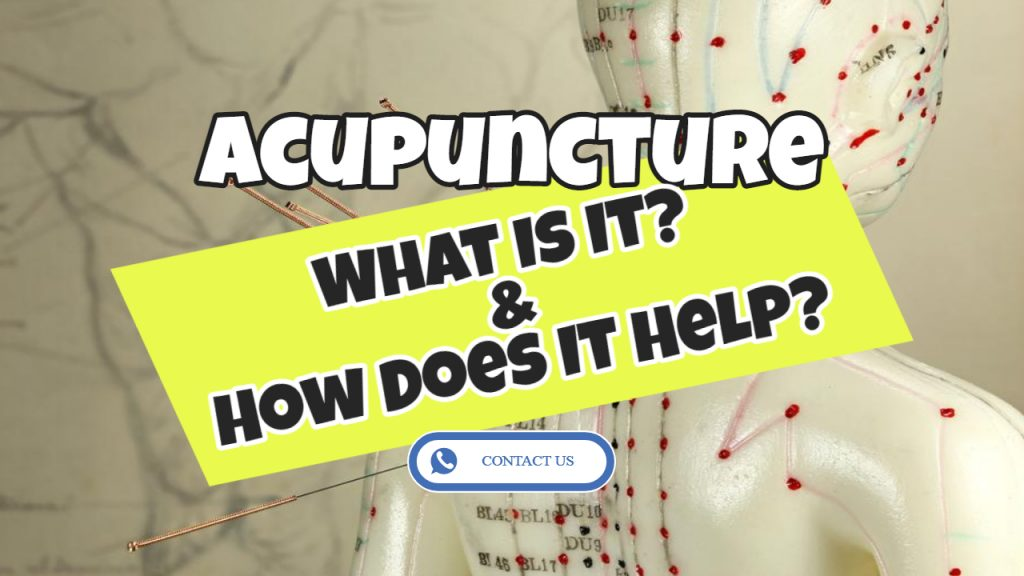 acupuncture - what is it