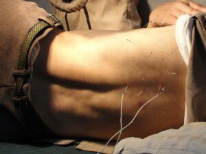 acupuncture-needles